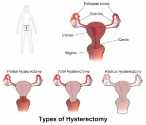 Surgery Types that can lead to Pain After A Hysterectomy